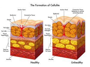 pg-cellulite-2